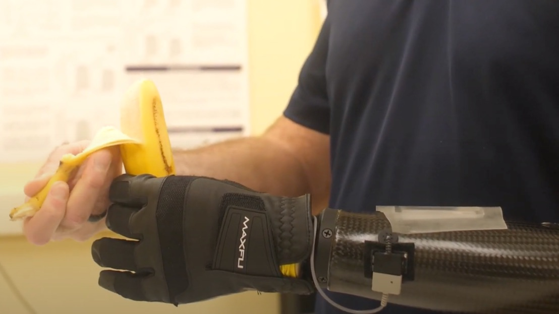 Man with a prosthetic arm holds and peels a banana.